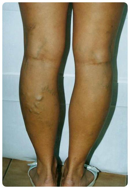 mennyit kell bekötözni a lábat visszeres műtét után a láb bekötése a visszerek eltávolítása után
