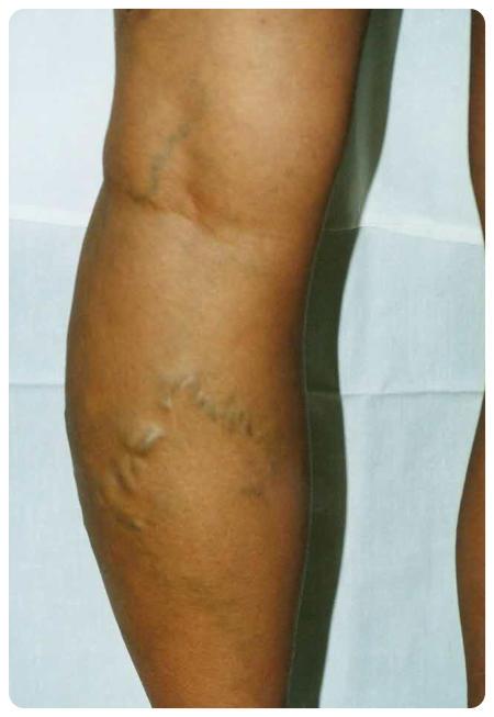 visszerek műtét után, lábfájdalom