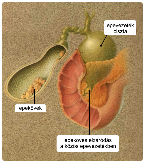 Az epevezeték papillomatosis - Az epehólyagrák és tünetei